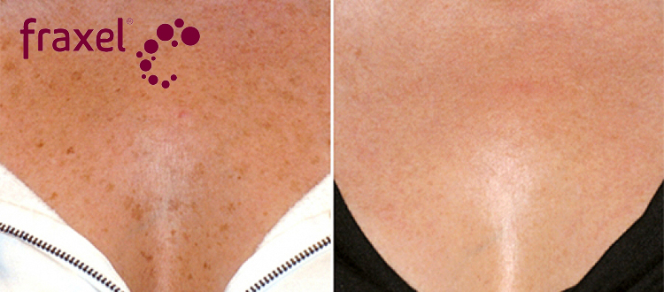 miami center for dermatology miami fraxel treatment laser skin treatments in miami. Black Bedroom Furniture Sets. Home Design Ideas