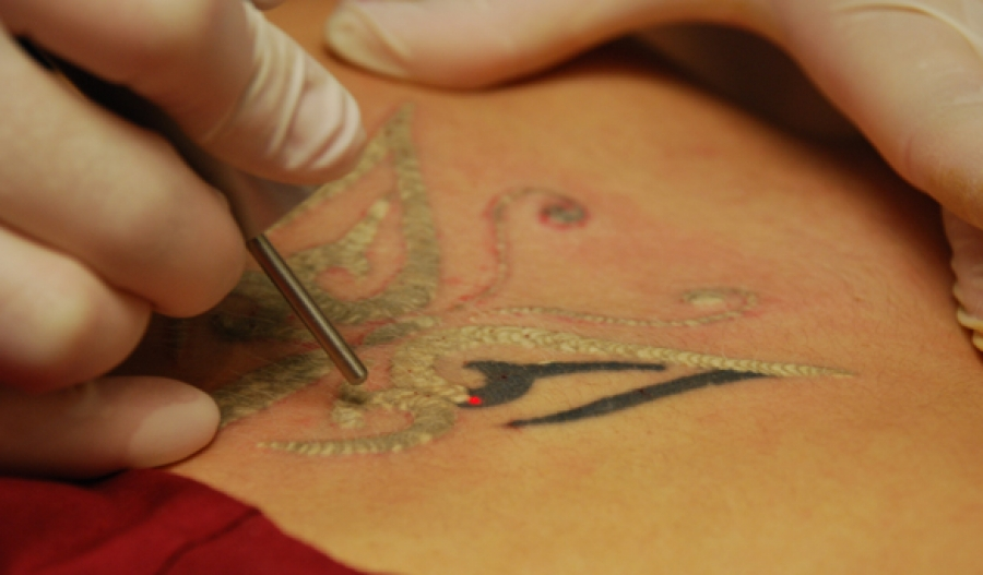 Tattoo Removal 101 - ANOKHI MEDIA