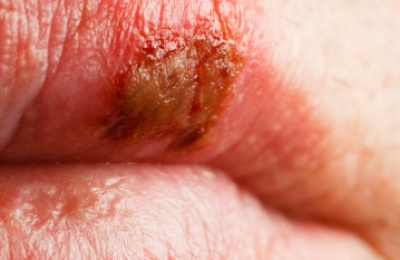 HSV-1 Fever Blisters Cold Sores Herpes Treatment Miami Dermatology