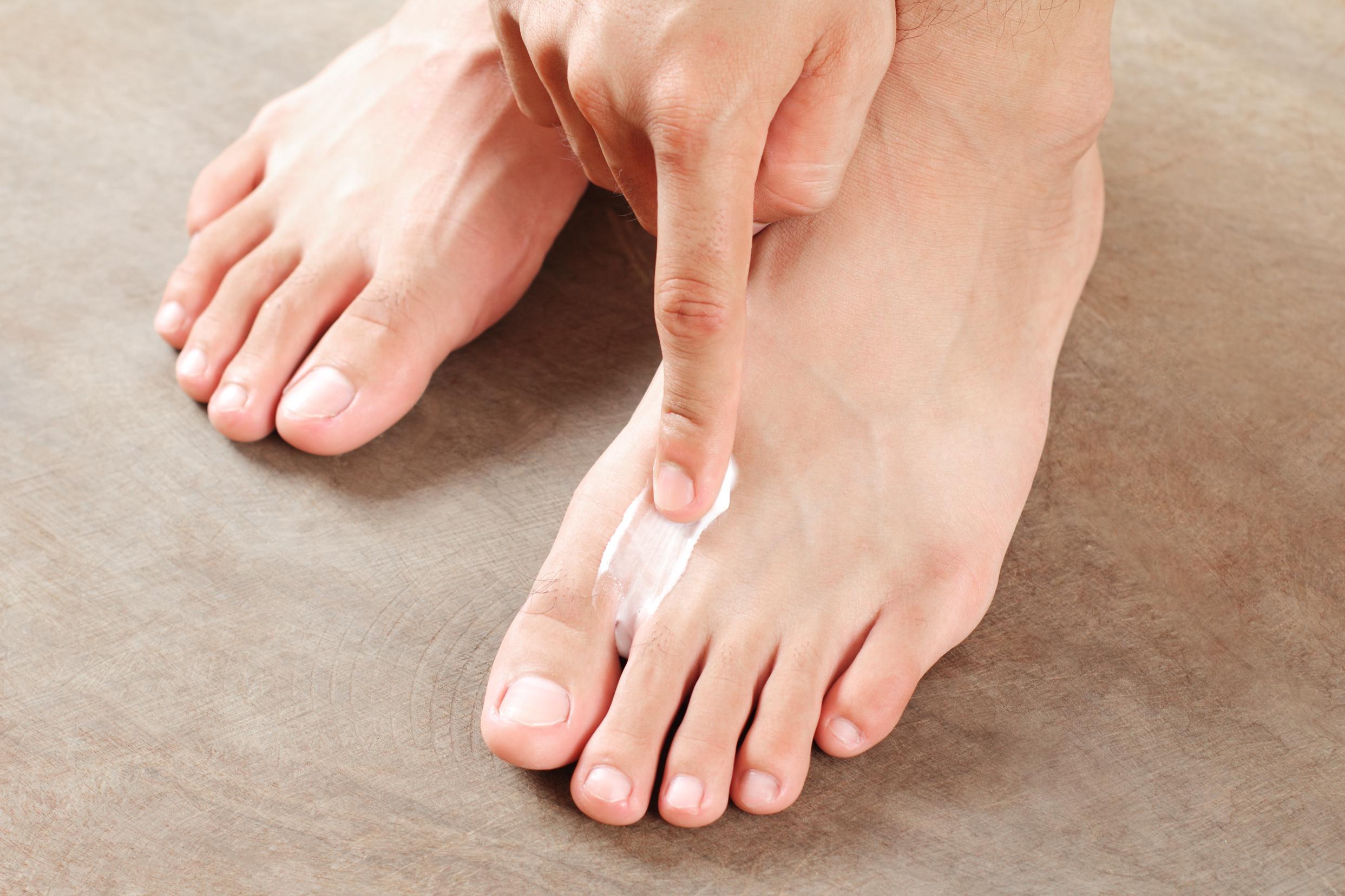 Народные рецепты против грибка ногтей