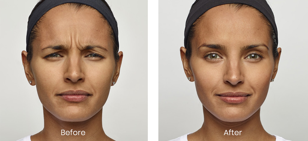 before and after of woman treated for Dysport