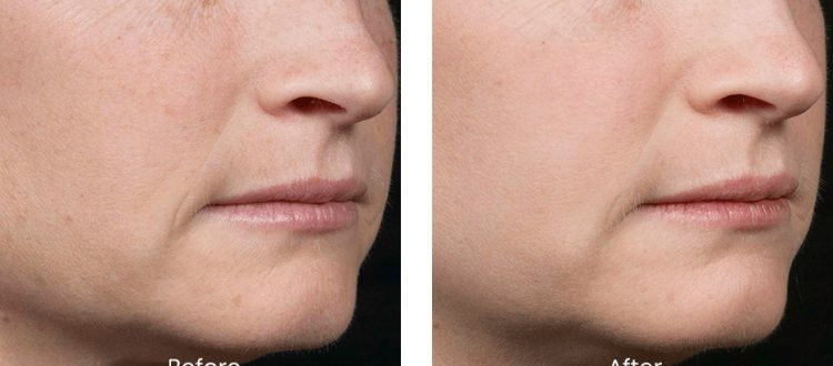 Before and after photo of white woman receiving fraxel laser treatment