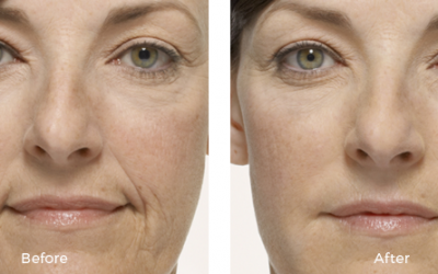 woman before and after juvederm treatment