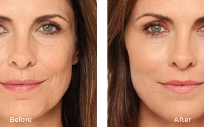 Before and afteer woman radiesse
