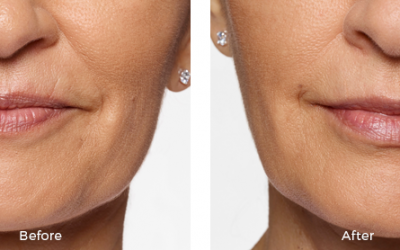 Before and after restlyane treatment