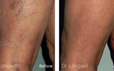 Before and after of patient treatment of SCLEROTHERAPY
