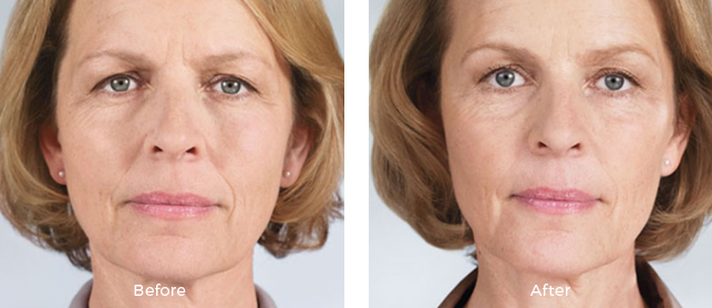 before and after female patient with sculptra