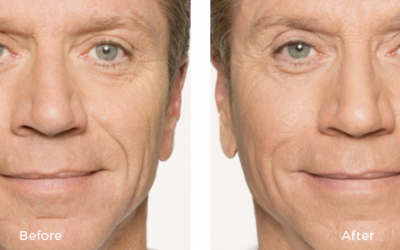 Male patient before and after belotero