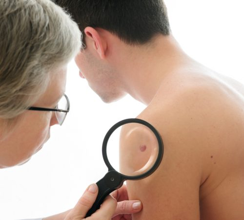 Doctor checking for Skin Neoplasms