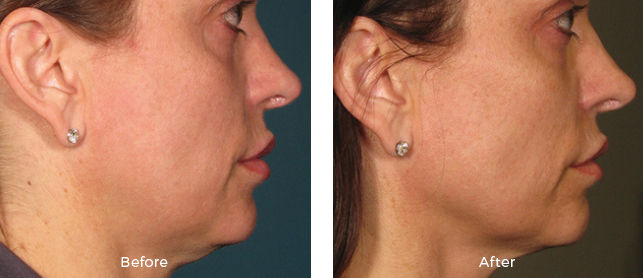 Before and after woman ultherapy