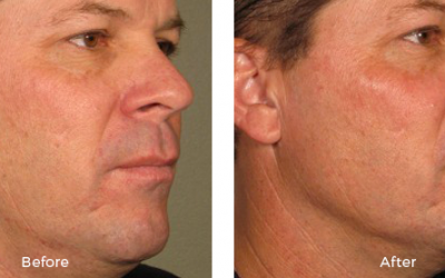 Before and after ulterapy on a male patient