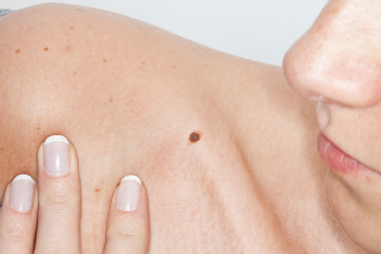 The Importance of Skin Cancer Screening