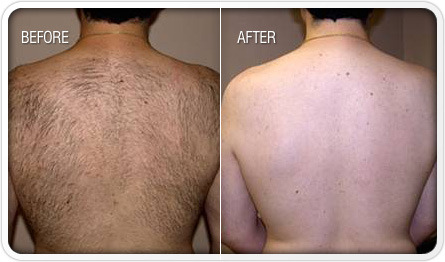 Laser Hair Removal Miami FL