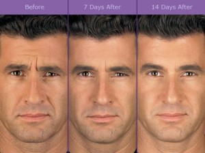 Botox for men before and after
