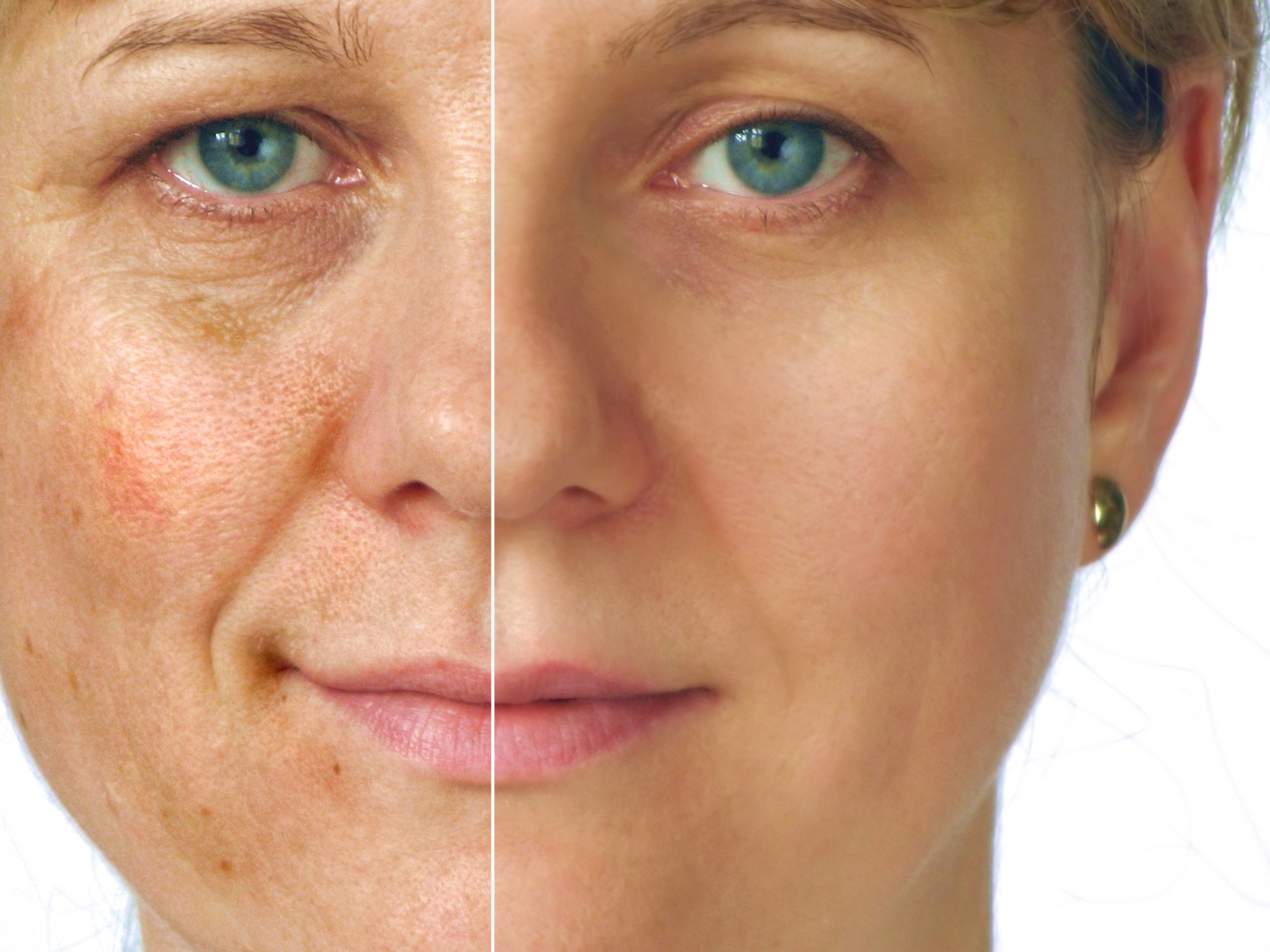 Skin Aging Treatment