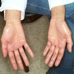 Hyperhidrosis Treatment Near Naranja