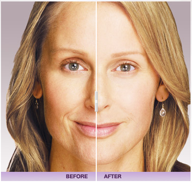 Juvederm Dermatology Treatment