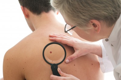 Best Skin Cancer Treatment in Miami