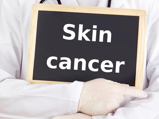 Skin Cancer Miami