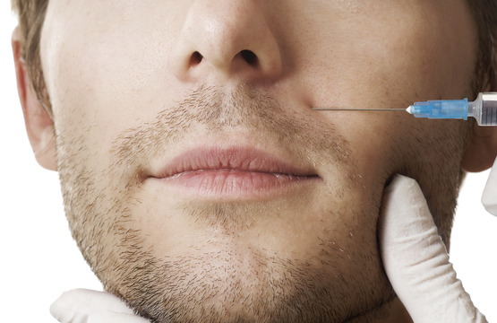 Facial Fillers for Men