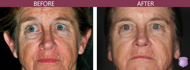 Wrinkle Reduction Procedure in Miami