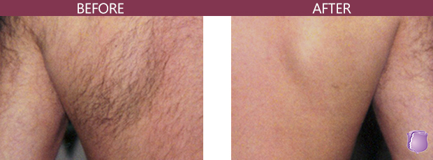 hair removal in miami, laser hair removal in miami