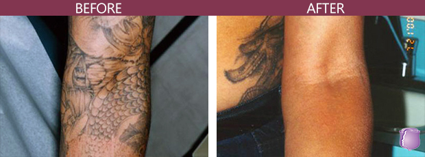 Tattoo Removal in Miami