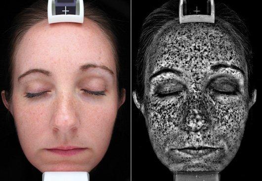UV Spots
