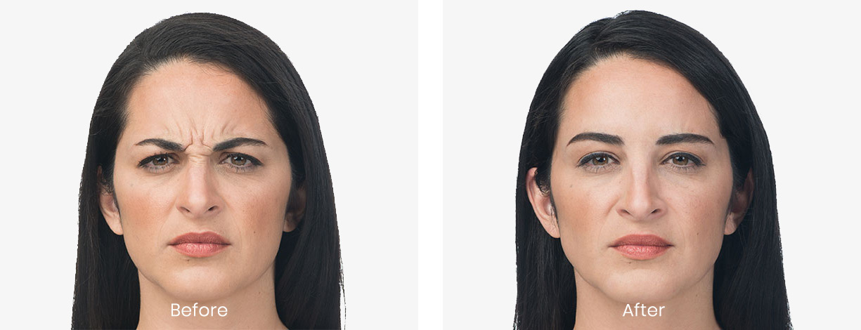 before and after Botox on female