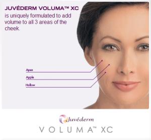 Announcement for launch of JUVÉDERM VOLUMA™ XC