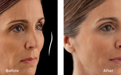 woman before and after juvederm voluma treatment