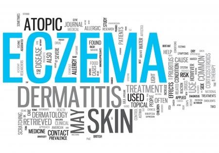 Causes Eczema