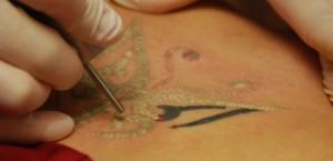Tattoo-Removal-620x300