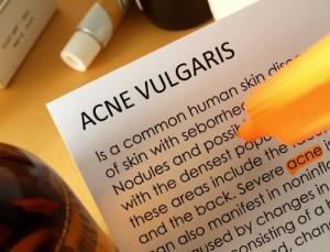 Acne Treatment Tips , Acne Treatment Miami