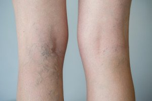 Spider Vein Treatment in Miami