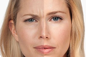 White model with blue eyes before and after
