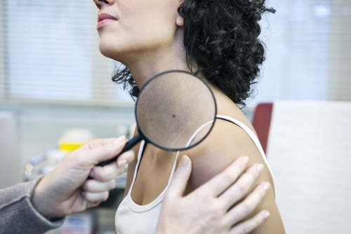 woman with skin cancer
