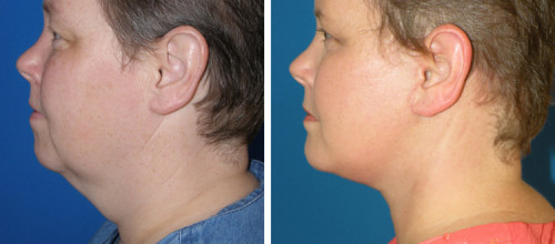 kybella-figure-9 , Kybella Treatment Near Palmetto Bay