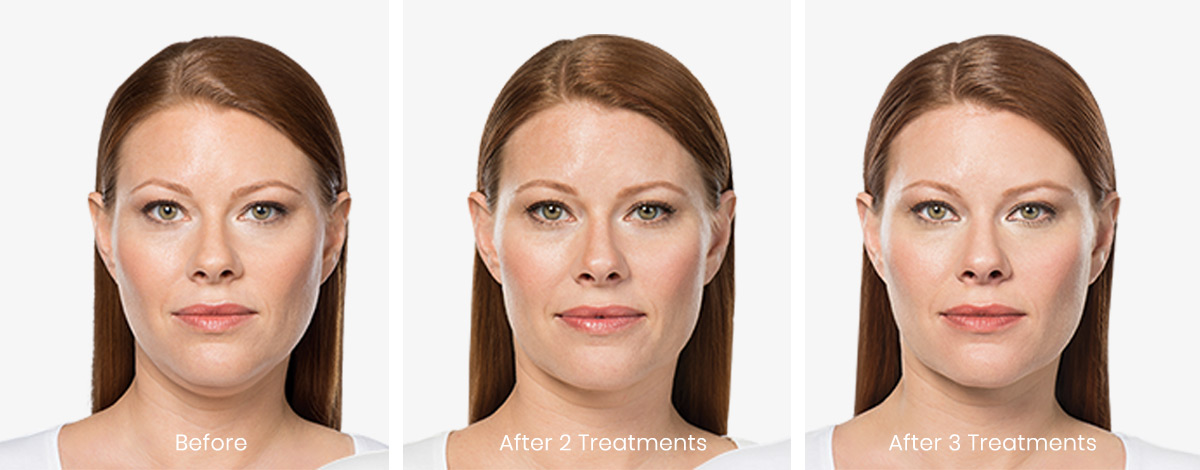 Three photos of a woman showcasing before, 2 treatments after and three treatments of Kybella