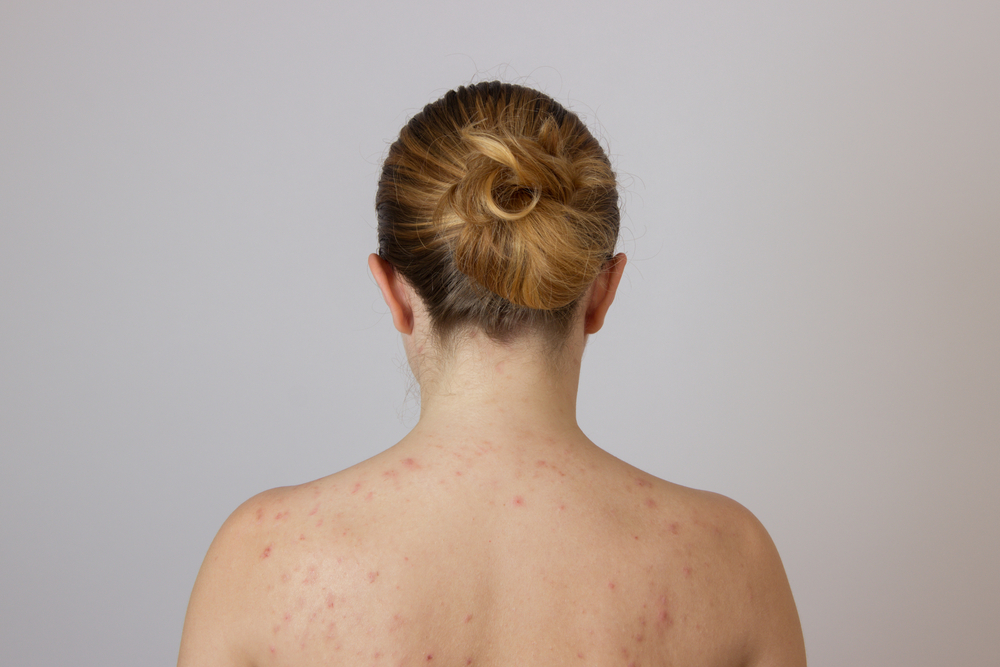 Woman with Pityriasis Rosea Skin Condition