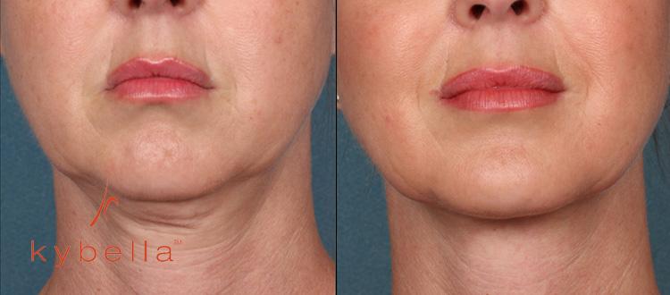 Kybella Treatment in Miami - Miami Center for Cosmetic Dermatology