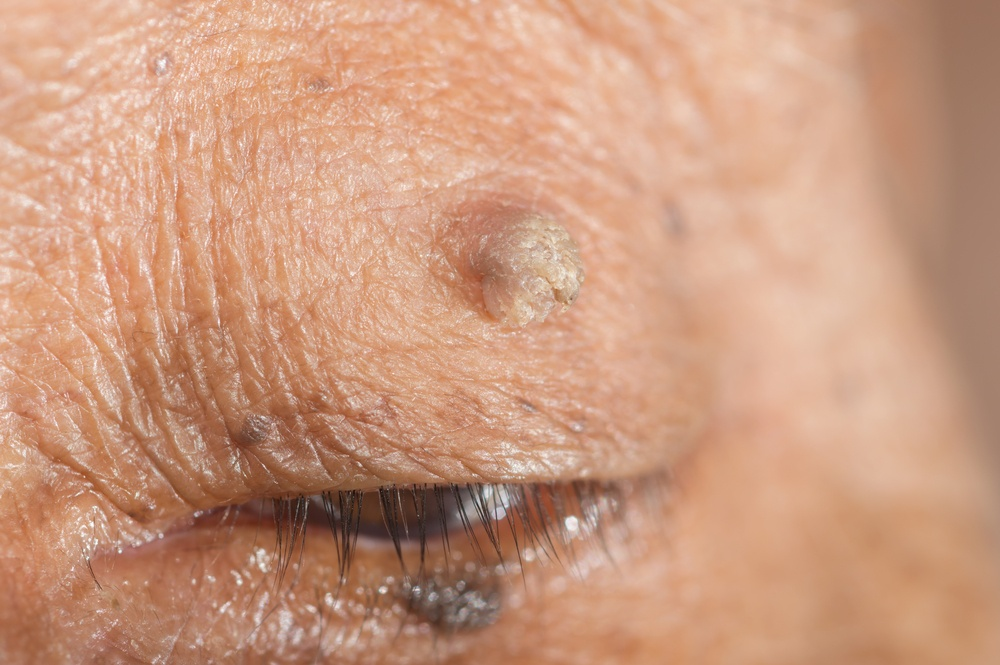 model with wart on their eye
