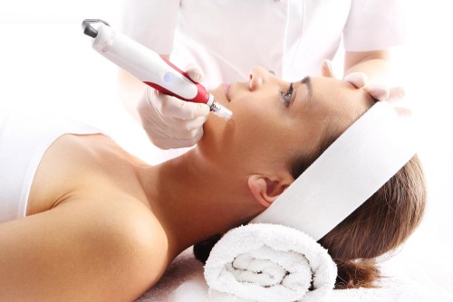 micro needling procedure