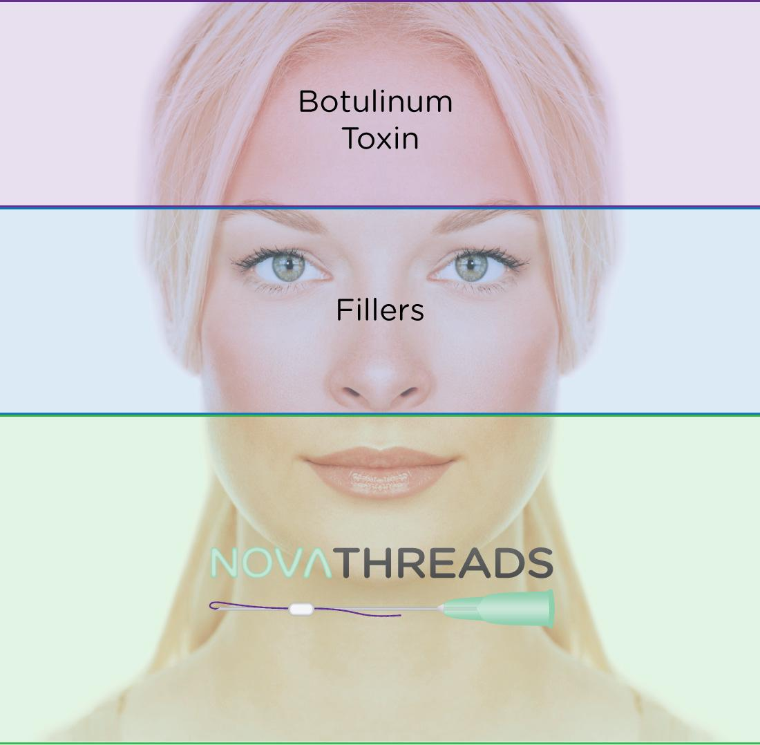 model in diagram showing botox fillers