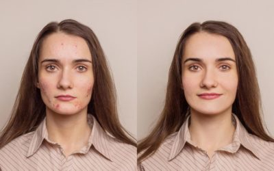 before and after for acne Treatment in Miami