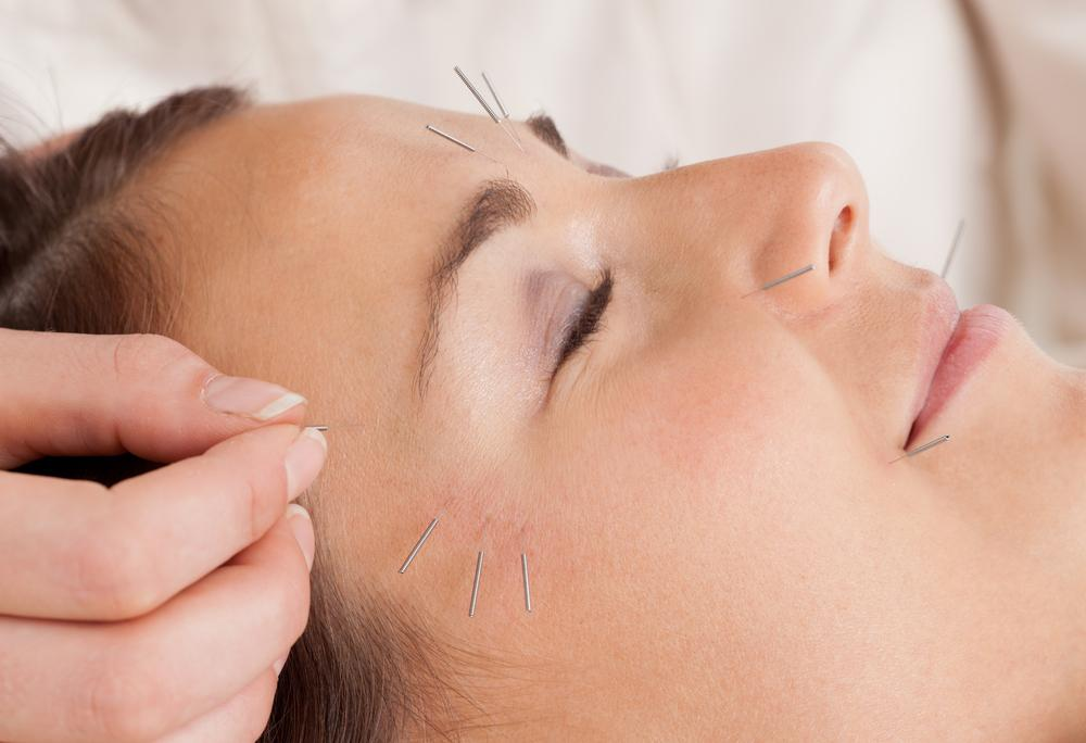 Model getting Micro Needling in Kendall