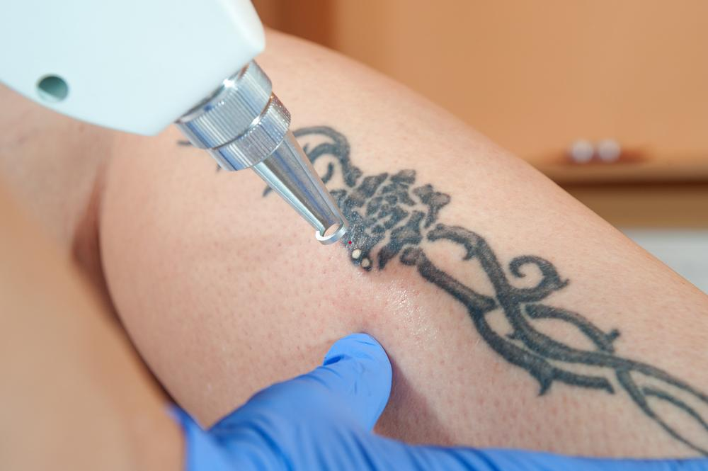 patient getting laser tattoo removal