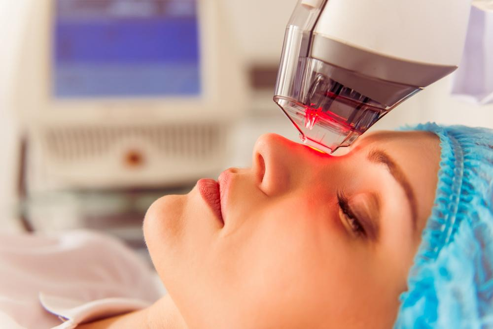 Model getting Laser Treatment for Aging Skin