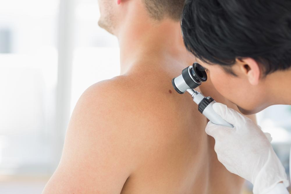 Doctor examining patient for skin cancer