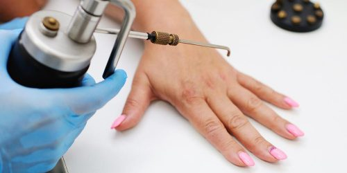 Woman with pink nails getting a wart treatment